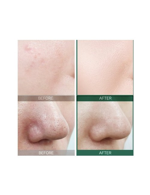 Serum Equilibrante Piel Grasa Some By AHA BHA PHA 30 Days Miracle Serum